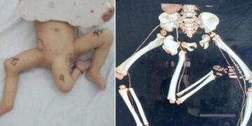 3 bacaklı bebek