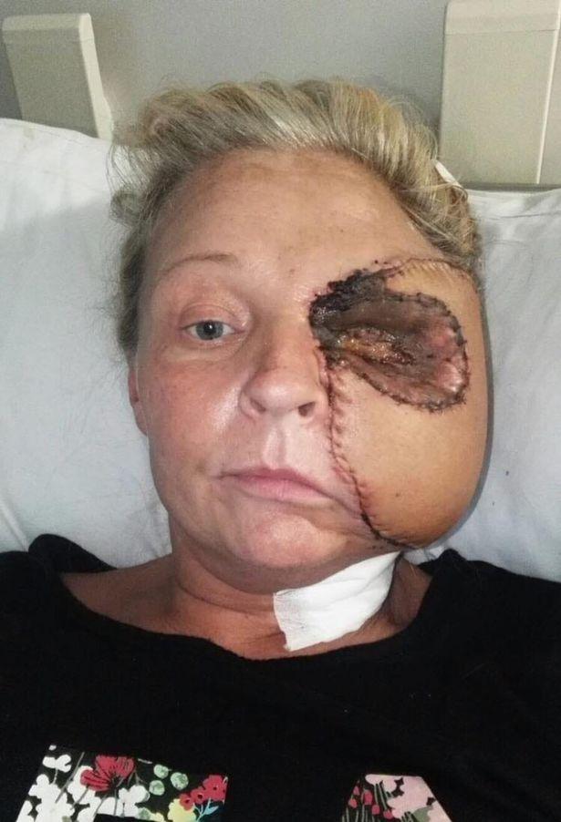 yüzünün yarısını kaybeden kadın