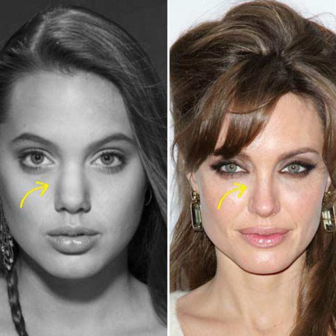 ünlülerin estetiksiz halleri
